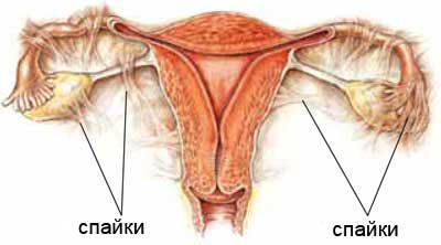 Трубное женское бесплодие