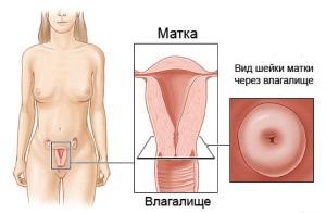patologiya-sheyki-matki1