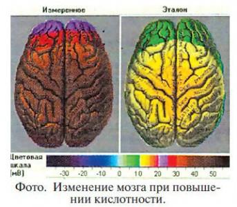 Код здоровья от Шишовой4