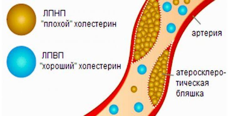 Холестерин вреден