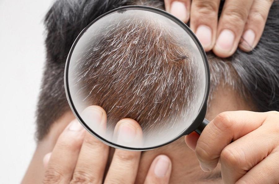 Стресс делает наши волосы седыми